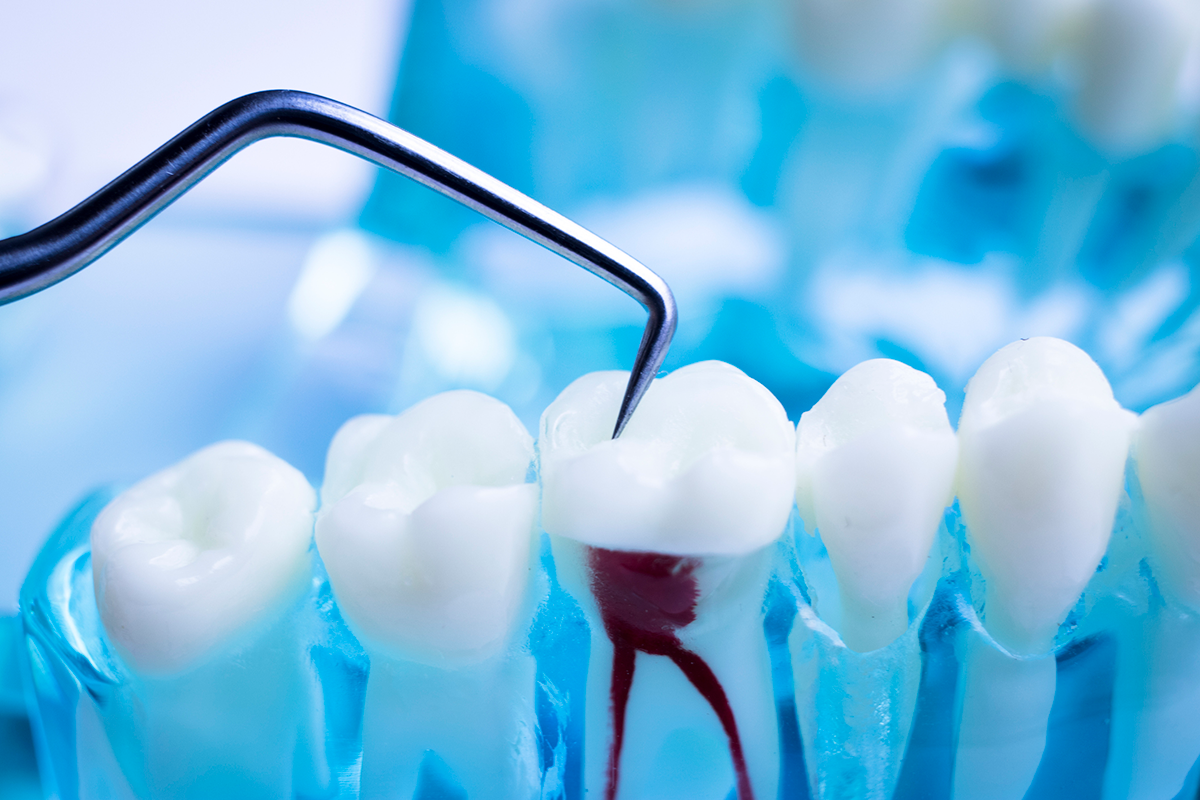 Root Canals: An Overview